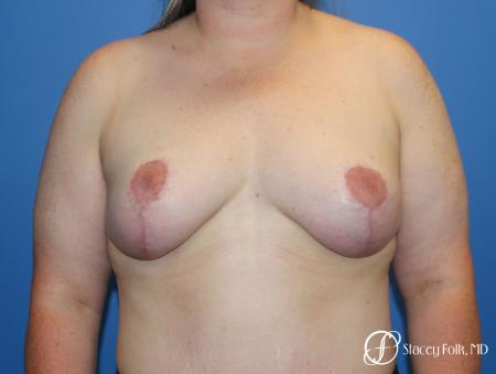 Breast Lift (Mastopexy) -  After Image 1