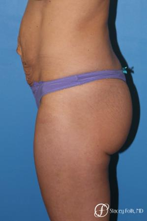 Denver Tummy Tuck - Abdominoplasty 8299 - Before and After Image 3