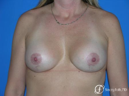 Denver Breast Lift and Augmentation 4558 -  After Image 1