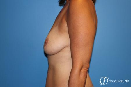 Denver Fat Transfer Breast Lift Mastopexy with Fat Transfer to the Breast 6916 - Before and After Image 3