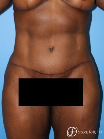 Denver Tummy Tuck - Abdominoplasty 7514 -  After Image 1
