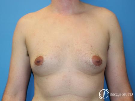 Denver FTM Female to Male Top Surgery 7708 - Before Image 1