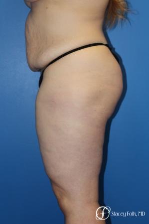 Tummy Tuck (Abdominoplasty) - Before and After Image 3