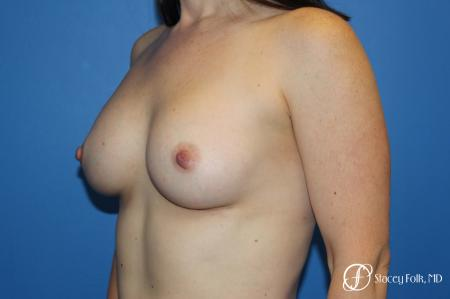 Breast augmentation with Natrelle Inspira breast implants -  After Image 4