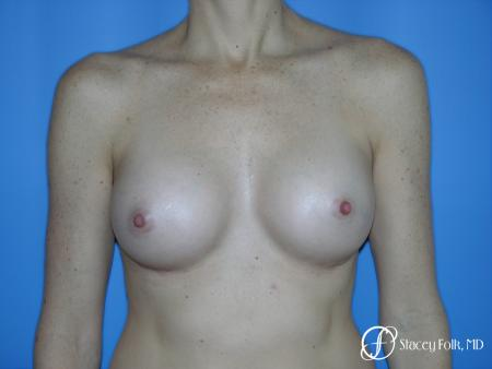 Denver Breast Augmentation 3633 -  After Image 1