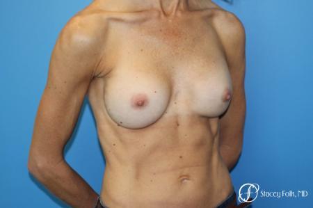 Denver Breast Revision 8504 - Before Image 2