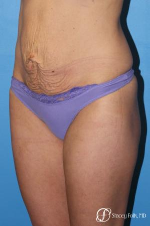 Denver Tummy Tuck - Abdominoplasty 8299 - Before Image 2