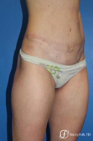 Denver Tummy Tuck (Abdominoplasty) 11239 -  After Image 4