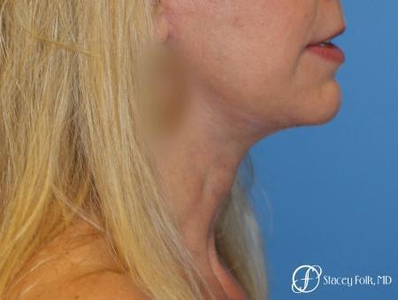 Denver Facial Rejuvenation Face Lift and Fat Injections 7126 -  After Image 1