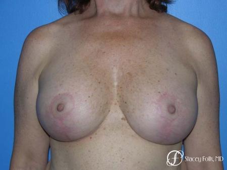 Denver Breast Lift - Mastopexy 7977 -  After Image 1