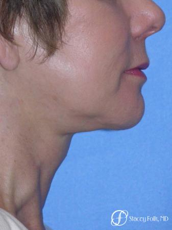 Denver Facial Rejuvenation Face Lift and Fat Injections 7117 -  After Image 1