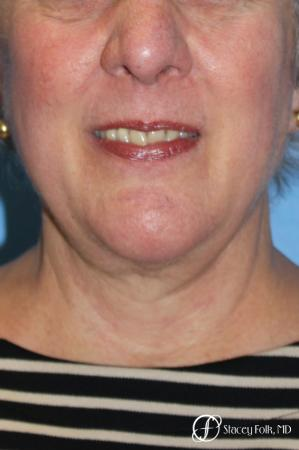 Denver Facial Rejuvenation Face and Neck Lift with Fat Transfer to the Face 9133 -  After Image 2