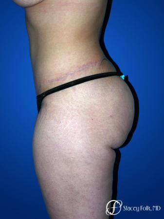 Denver Tummy Tuck 23 -  After Image 2