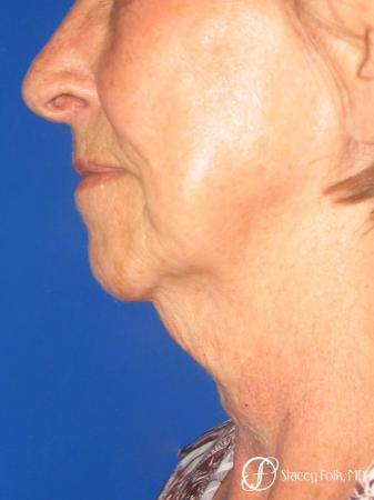 Denver Facial Rejuvenation Face Lift and Fat Injections 7129 - Before Image 1