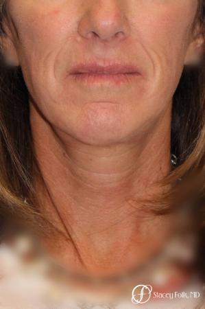 Denver Facial Rejuvenation Face lift, Fat Injections, and Laser Resurfacing 7132 -  After Image 3