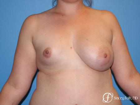 Fat Transfer To Right Breast - Before Image 1