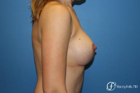 Denver Breast lift and Augmentation 7850 -  After Image 3