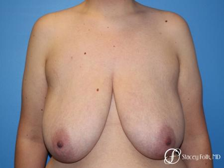 Denver FTM Female to male top surgery 5255 - Before Image 1