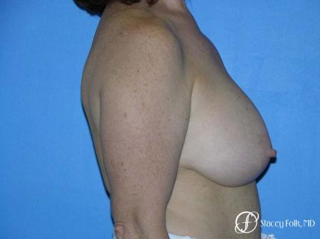 Denver Breast Lift - Mastopexy 7977 - Before and After Image 3