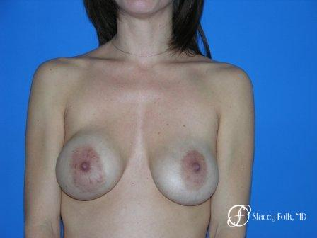 Denver Breast Revision 48 - Before Image