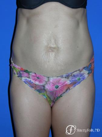 Denver Tummy Tuck Abdominoplasty 5456 - Before Image 1