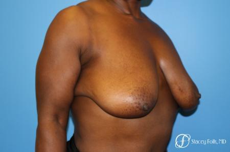 Denver Breast Lift - Mastopexy 7509 - Before Image 2
