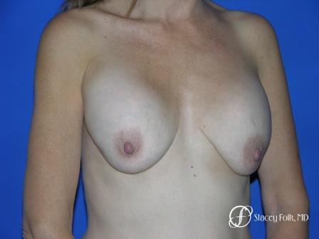 Denver Breast Revision 51 - Before and After Image 2