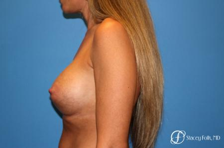 Denver Breast Augmentation 3626 -  After Image 5