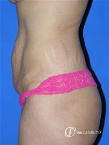 Denver Tummy Tuck 19 - Before and After Image 2