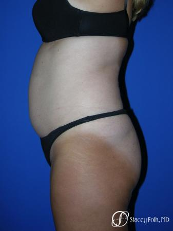 Denver Tummy Tuck - Abdominoplasty 53 - Before and After Image 2