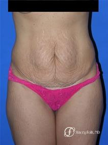 Denver Tummy Tuck 19 - Before Image 1