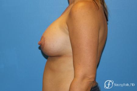 Denver Breast Lift and Augmentation 8629 -  After Image 3