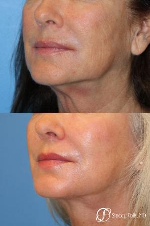 Denver Laser Skin Resurfacing Face 9390 -  After Image 1