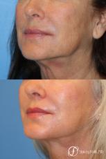 Denver Laser Skin Resurfacing Face 9390 - After Image