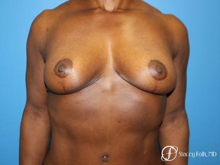 Denver Breast Reduction (Mastopexy) 7081 - After Image