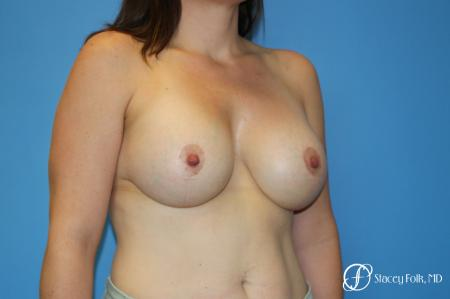 Denver Breast Lift (Mastopexy) with agumentation 9093 -  After Image 2