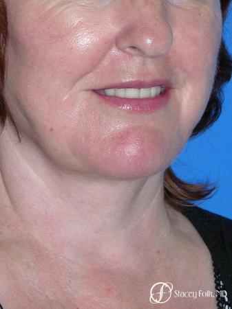 Denver Facial Rejuvenation Face lift, Fat Injections, Laser Resurfacing 7133 -  After Image 2