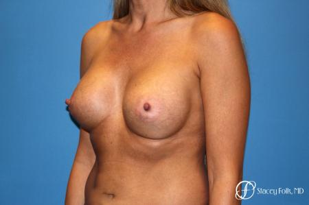 Denver Breast Augmentation 3626 -  After Image 2