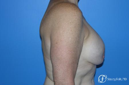 Denver Breast Revision 7990 - Before and After Image 4