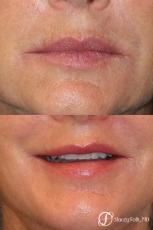 Denver Laser Skin Resurfacing 8276 - Before Image