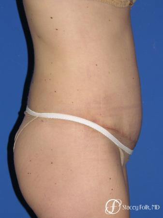 Denver Tummy Tuck - Abdominoplasty 10351 -  After Image 3