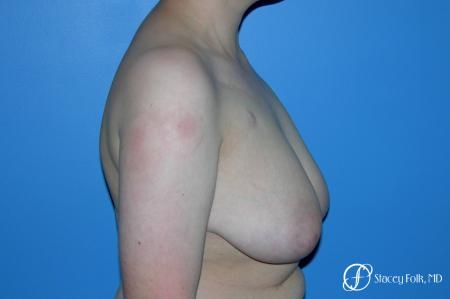 Denver Female to Male Top Surgery 5257 - Before Image 3