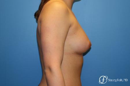 Fat Transfer Breast Augmentation -  After Image 3