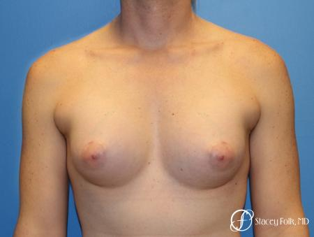 Denver Male to female top surgery with Sientra anatomic textured classic implants 5256 - After Image