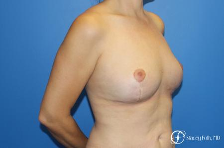Fat Transfer Breast Lift (Mastopexy) -  After Image 2