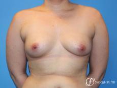 Denver FTM Top Surgery 5088 - Before Image