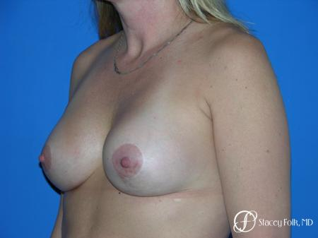 Denver Breast Lift and Augmentation 4558 -  After Image 2