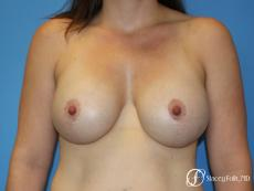 Denver Breast Lift (Mastopexy) with agumentation 9093 - After Image