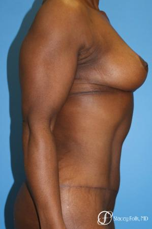 Denver Breast Lift - Mastopexy, and Tummy Tuck - Abdominoplasty 7512 -  After Image 4