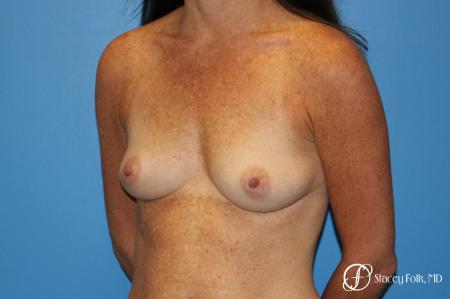 Denver Breast Augmentation using Sientra Silicone Gel Breast Implants 9362 - Before Image 2